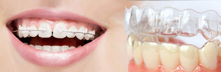 Which is better invisalign or braces newbury dental group at newbury dental group we understand the important role that orthodontics can play in creating a healthy and beautiful smile solutioingenieria Images